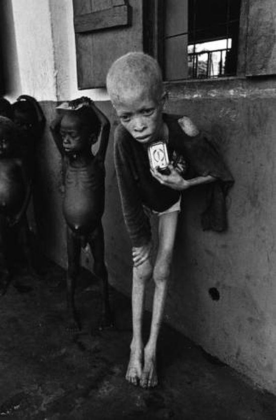 Albino boy in an orphanage, Biafra, 1970