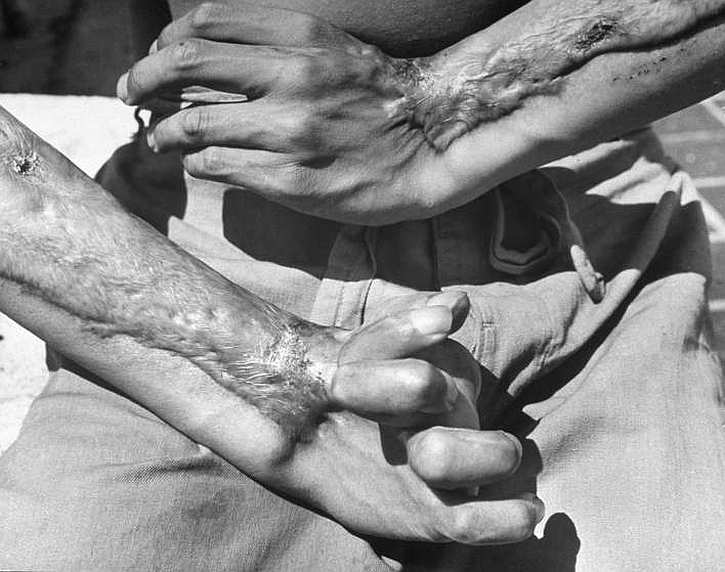A survivor of the United States' atomic attack on Hiroshima, still hospitalized two years later, shows the damage to his hands, 1947.