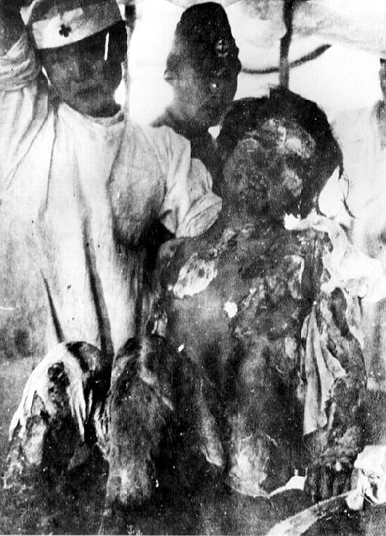 A victim of the atomic bomb dropped on Nagasaki