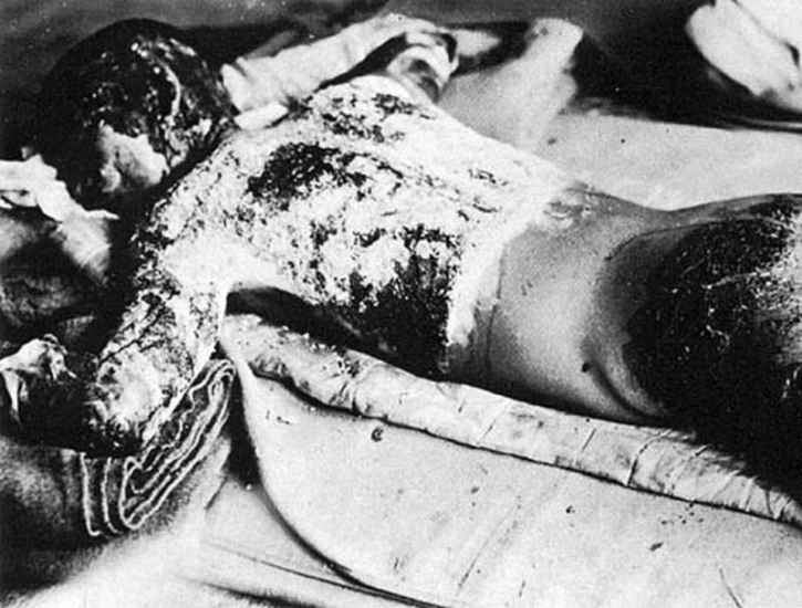 An A-bomb victim with burns over his entire body, 7 August 1945
